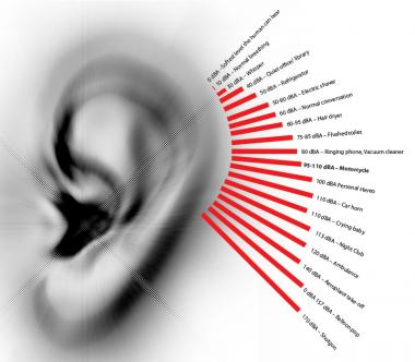 Todo lo que se sabe sobre el tinnitus, un infierno sonoro más común de lo que crees