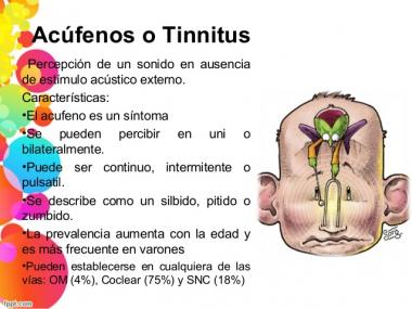 Nuestro cerebro influye en la percepción del tinnitus