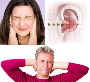 Tinnitus, el ruido que no cesa
