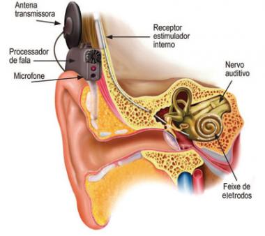 Diseñan un implante para que los sordos alcancen «percepciones inalcanzables»