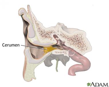 Experto advierte de que el tapón de cerumen es una de las causas más comunes de pérdida de audición