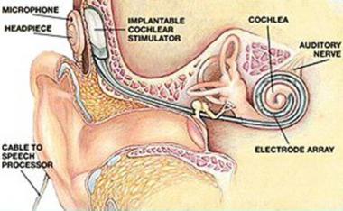 """Upyd inquiere al gobierno por el """"monopolio"""" de los audífonos de los implantes cocleares"""